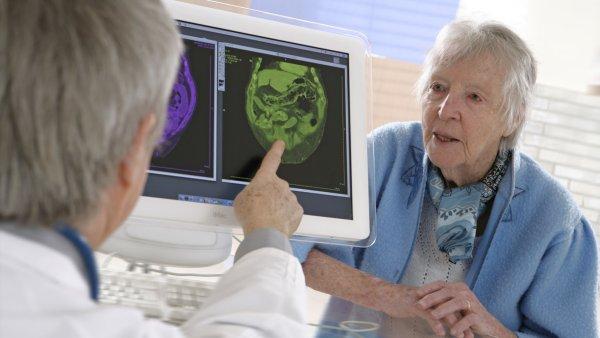 Ученые открыли новый способ предотвращения старческого слабоумия