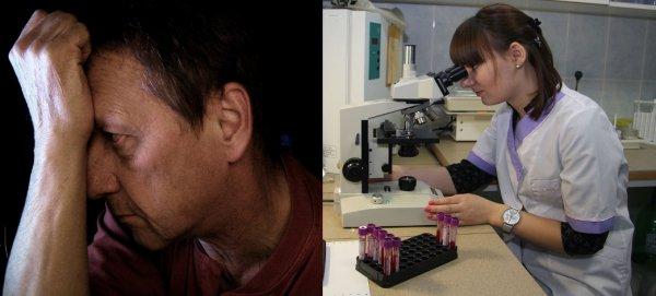 Учёные открыли первый ген, отвечающий за импотенцию
