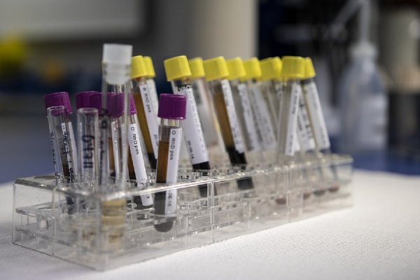 Биохимики научились выявлять рак яичников на ранней стадии
