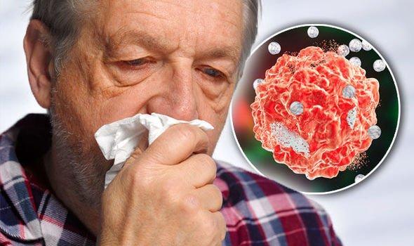 Ученые: Насморк является первым симптомом рака носовой полости