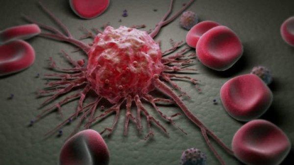 Российские ученые разработали световой метод лечения онкологии